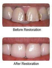 Pocrelain veneers, before and after restoration