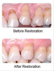 Periodontal treatment, before and after