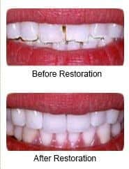 Porcelian veneers, before and after restoration