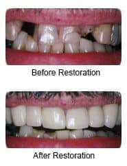 Prosthodontics with crowns and bridgework, before and after restoration