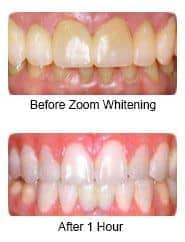 Manhattan Dentist Cosmetic Teeth Whitening