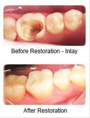 Tooth-colored inlay, before and after restoration