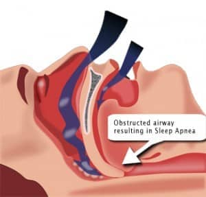 Obstructed Airway - OSA