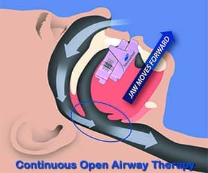 SomnoDent - Continuous Open Airway Therapy